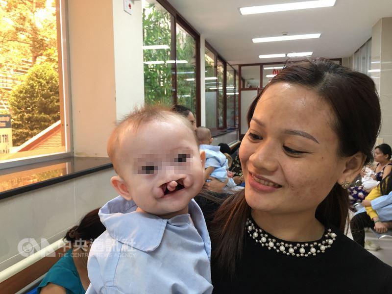 越南6個月大男嬰阮文勝(左)嚴重雙側唇顎裂,手術前小臉被深深的2道裂縫劃開,口鼻相連。(羅慧夫顱顏基金會提供)中央社記者陳偉婷傳真 107年3月28日