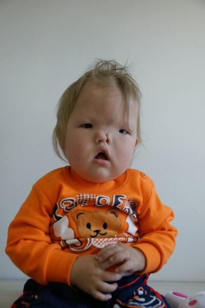 圖為桑賈1歲時狀況。(羅慧夫顱顏基金會提供)