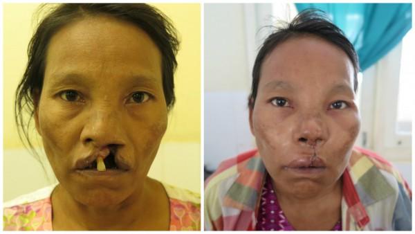 道桑婷阿嬤唇顎裂術前術後面貌相差甚大。圖片來源: 羅慧夫顱顏基金會