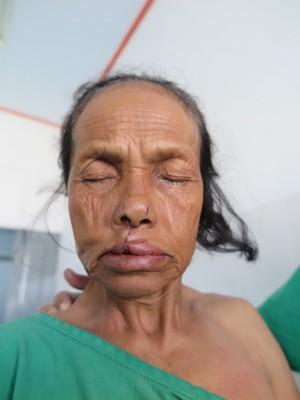 印尼59歲婦人余明是天生唇顎裂患者,上周接受我國義診團治療,替她找回與人相處的自信。(羅慧夫顱顏基金會提供)