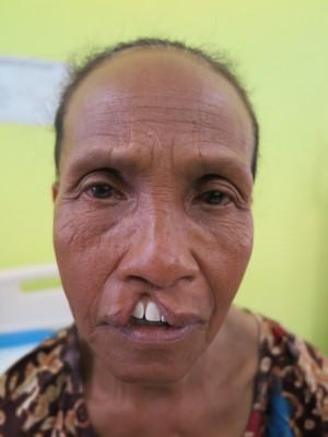 印尼59歲婦人余明天生是唇顎裂患者,因家貧無法接受治療,忍受超過59年的異樣眼光。(羅慧夫顱顏基金會提供)