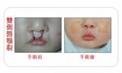 雙側唇顎裂術前術後